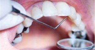 احکام دندانپزشکی در ماه مبارک رمضان